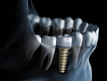 dental implants OC