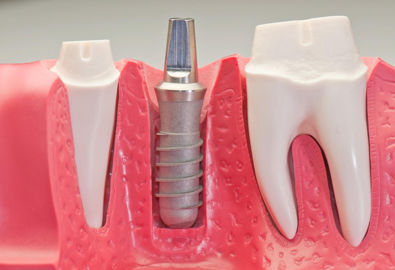oral implants
