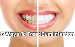 six way to treat dental surgery guru
